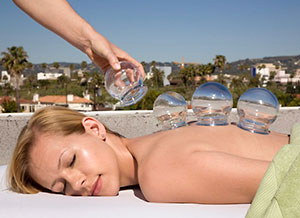 Cupping at Optimal Health in Beverly Hills, Los Angeles, California